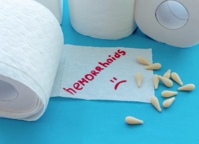 Hemorrhoid Banding Offers Non-Surgical Relief